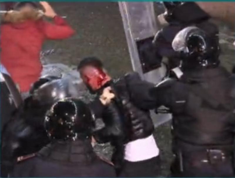 Pamje të rënda/ Policët masakrojnë protestuesin me shkopinj gome